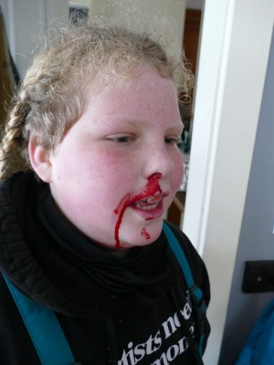 Harvey with blood all over his face from a bloody nose